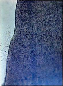 Gefügebild der Randzone eines spritzgegossenen Gehäuseteils aus Acryl/Butadien/Styrol